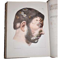 Ricord,Traité complet des maladies vénériennes.Clinique iconographique de l'Hôpital des vénériens